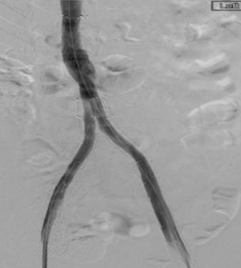 iliac lysis/stent case:Vein images:Lauren P post lysis pre stent.png