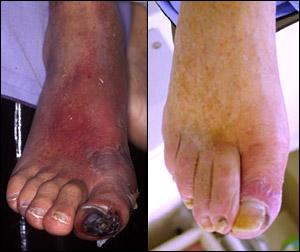 https://virchicago.com/wp-content/uploads/2013/03/pad-gangrene.jpg