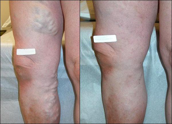Varicose Veins In Scrotum Natural Treatment