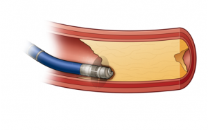Laser-guided artery drill