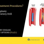 Peripheral Artery Disease, VIR_chicago